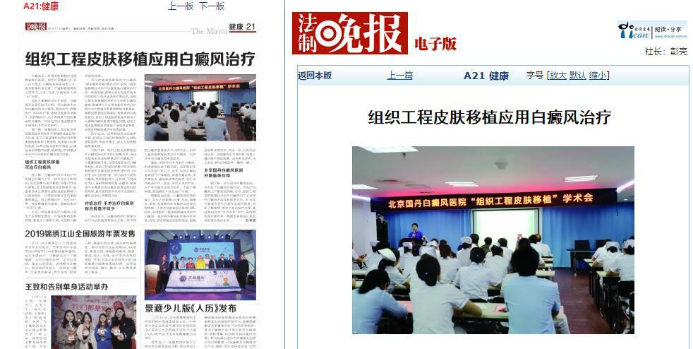 组织工程皮肤移植北京国丹白癜风医院开展临床应用